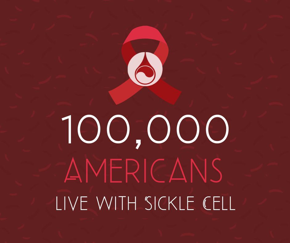 100,000 americans live with sickle cell